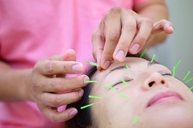 せきのはりきゅう接骨院の美容鍼